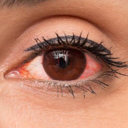 همه چیز در مورد قرمزی چشم