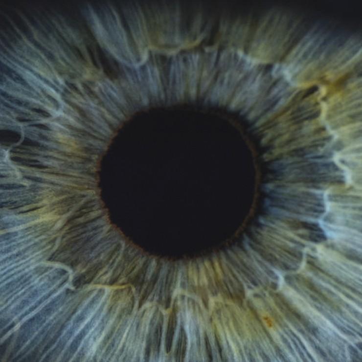اصلی ترین دلایل کوری یا نابینایی